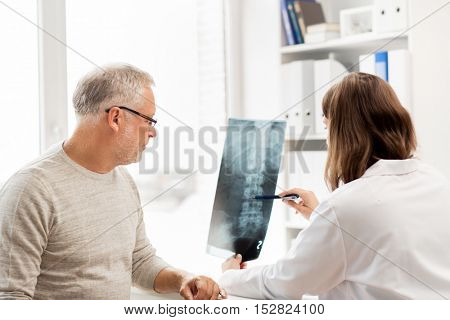 medicine, healthcare, surgery, radiology and people concept - doctor showing x-ray of spine to senior man at hospital