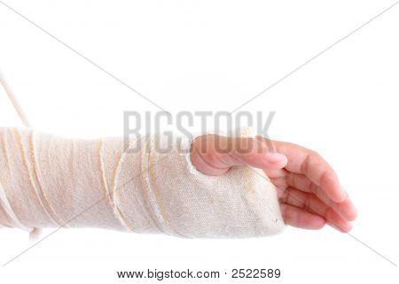 Fractura de brazo