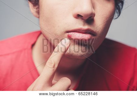 Young Man With Cold Sore