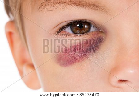 Boy With Bruise
