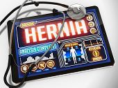 stock photo of hernia  - Hernia  - JPG