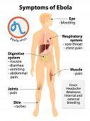 stock photo of hemorrhage  - Ebola virus disease - JPG