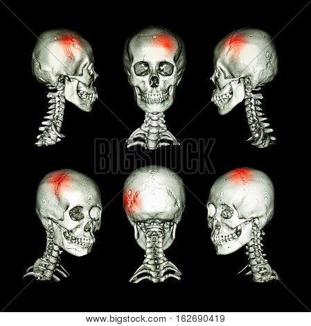 CT scan and 3D image of head and cervical spine . Use this image for stroke skull fracture neurological condition .