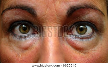 Close Up Of Tired Woman Eyes