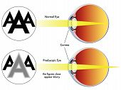 stock photo of refraction  - medical illustration of the symptoms of presbyopia - JPG