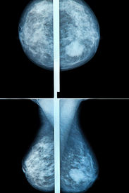 image of mammography  - mammography breast scan X - JPG