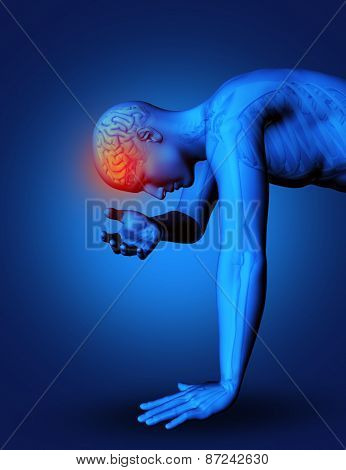 3D render of male figure with brain highlighted as if in pain