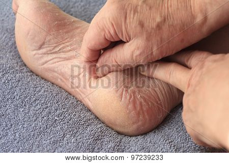 A man peeling dry skin from his foot