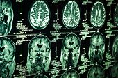 stock photo of radiation therapy  - Very sharp scan of the human brain in green - JPG