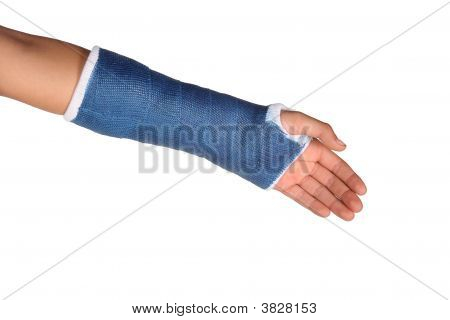 Blue Cast On Arm