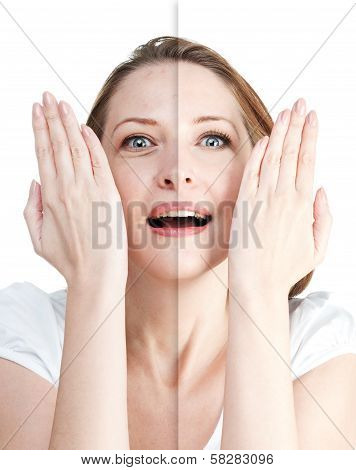 Woman's Portrait Before And After Skin Care Isolated On White