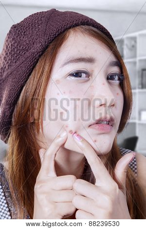 Adolescent Girl Pressing Whelk On Face