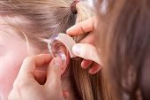 image of hearing  - Inserting a hearing aid into a young girl - JPG