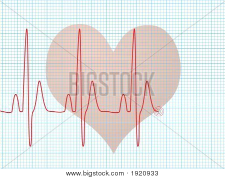 Heart Beat Medical