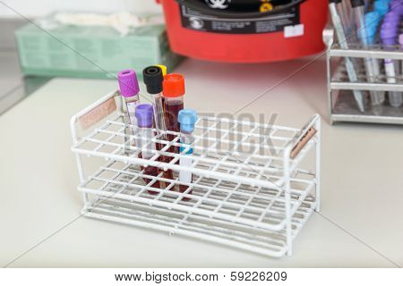 Test tubes with blood samples in medical laboratory