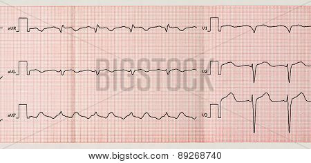 Tape Ecg With Paroxysm Of Atrial Flutter