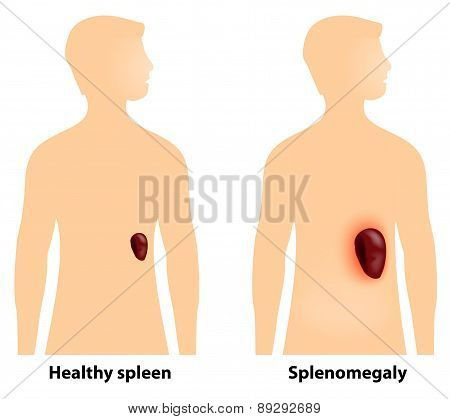 Splenomegaly Or Enlarged Spleen