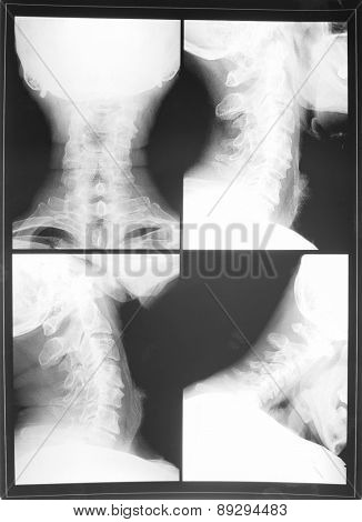 X-ray of the cervical