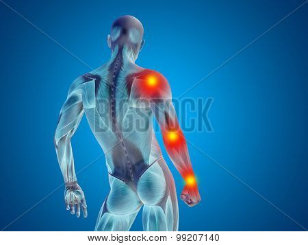 Conceptual 3D human man anatomy upper body or health design, joint or articular pain, ache or injury on blue background