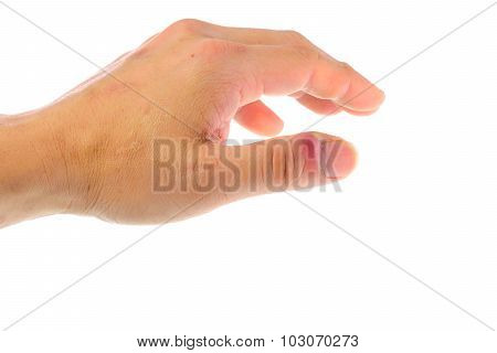 Swollen Finger With Fingernail Bed Inflammation Due To Bacterial Infection On A Hand