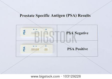 PSA result negative and positive