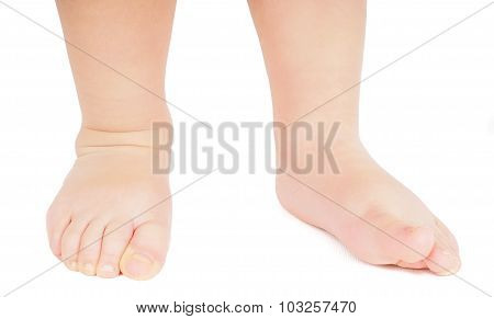 Little Person Walking Towards Barefoot Isolated On White Background
