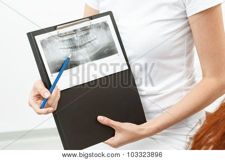 Dentist showing the X-ray to her client