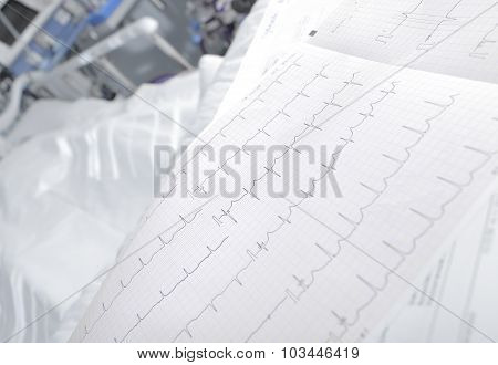 Ecg Chart In The Ward Closeup