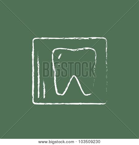 X-ray of the tooth hand drawn in chalk on a blackboard vector white icon isolated on a green background.