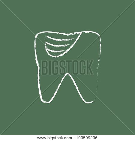 Tooth decay hand drawn in chalk on a blackboard vector white icon isolated on a green background.