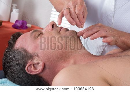 Man In An Acupuncture Therapy At The Health Spa