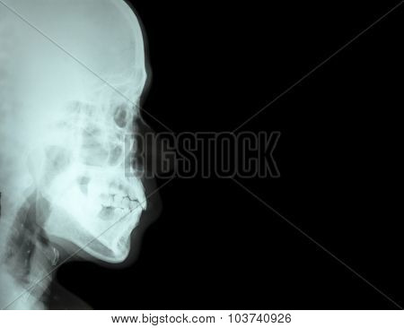 Film X-ray Lateral Nasal Bone ( Side View Of Skull ) And Blank Area At Right Side