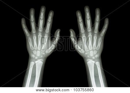 Film X-ray Normal Both Hands Of Child