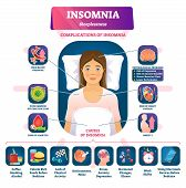 Insomnia Vector Illustration. Labeled Sleeplessness Symptoms, Causes Scheme. Anxiety, Tired And Exha poster