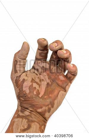 Muddy Hands On A White Background.