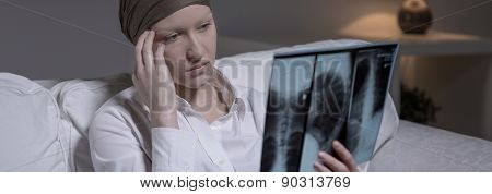 Despairing Woman With Brain Cancer