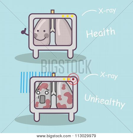 Healthy Vs Unhealthy Lung Concept