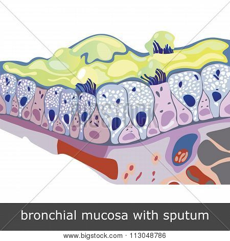 Bronchial Mucosa With Sputum