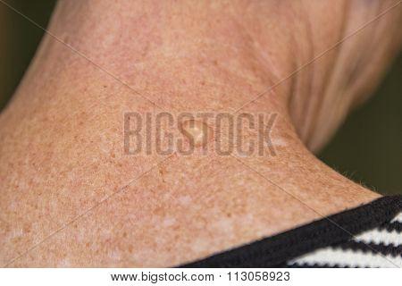Liquid Nitrogen Therapy Blister