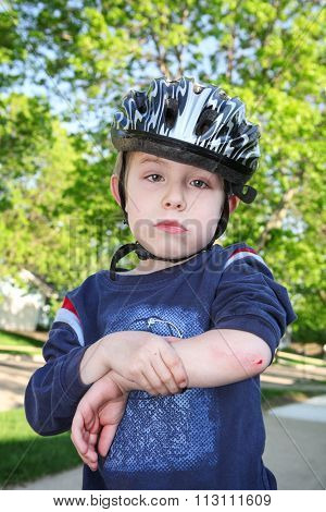 Sad young boy with a cut on his elbow.  Bike injury.