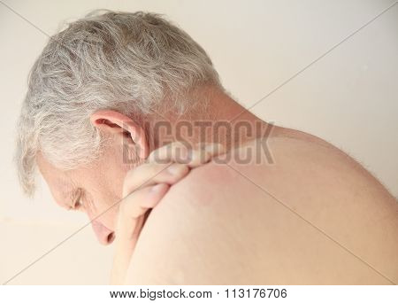 Rash on the back of a man