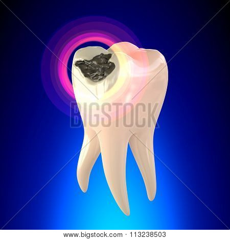 Tooth Molar With Dental Caries