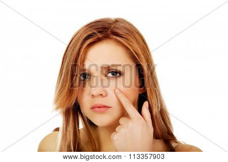 Teenage woman pointing on pimple on her cheek.