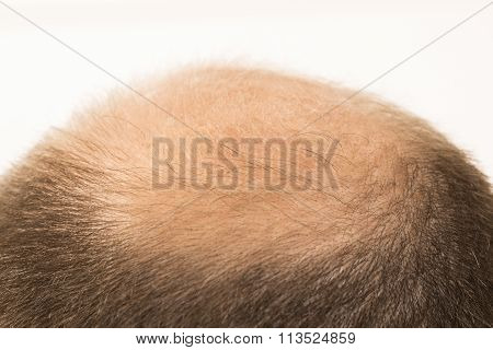 Premature baldness, man, 40s, white background