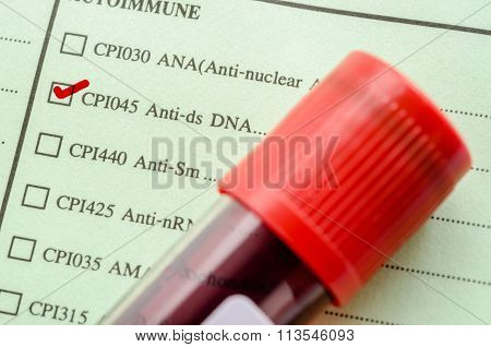 Request Screening Anti-ds Dna
