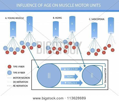 Infographics: In Fluence Of Age On Muscle Motor Units