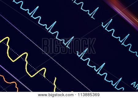 Colorful Ecg Waves On The Monitor