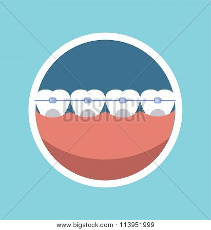 Tooth braces vector illustration