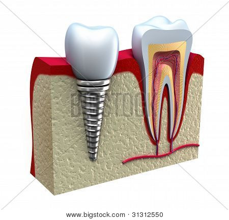 Anatomy of healthy teeth and dental implant in jaw bone