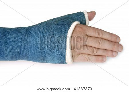 Broken Wrist, Arm with a Blue Fiberglass Cast on a White Background